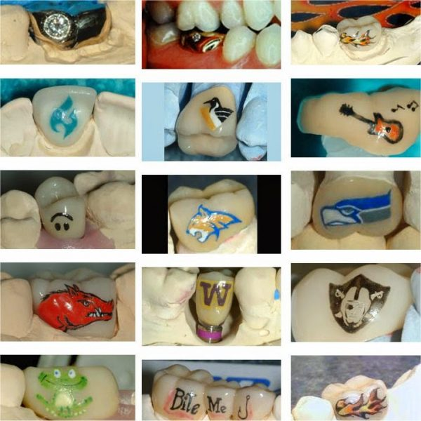 dental tatoos 1
